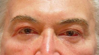 Lower blepharoplasty with fat repositioning after 251709