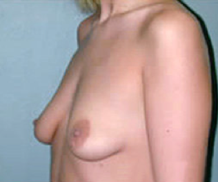 Breast Implants before 476827