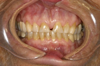 Diastema (Gap) Closure before 111716