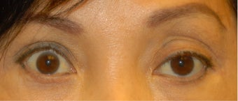 Ptosis Correction before 555502