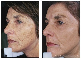 IPL to full face for uneven skin tone before 6596