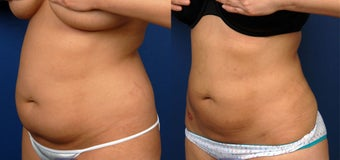 Liposuction Abdomen and Flanks before 420574