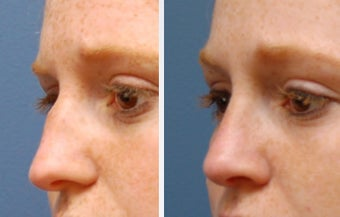 Rhinoplasty before 314278