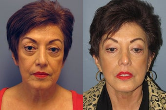 Lite Lift, neck lift, eyelid lift before 523456