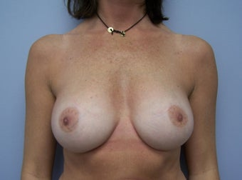 Breast Implant Removal before 589955
