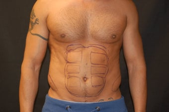Liposculpting of the abdomen before 319829