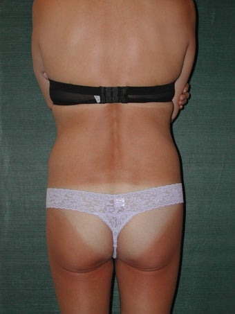 Female Liposuction - back before 117044