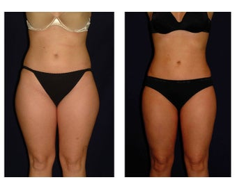 Liposuction before 286630