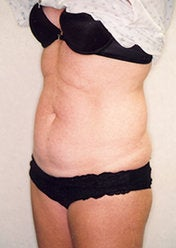 Tummy Tuck before 388159