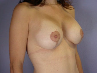 Breast Lift / Breast Augmentation  after 291038