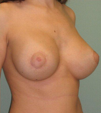Breast Augmentation / Lift 355734