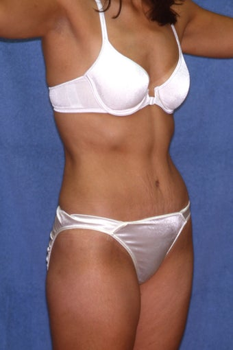 Tummy Tuck with Liposuction 410983