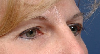 Endoscopic Browlift and Upper lid Blepharoplasty  before 414272