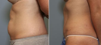 37 year old female with mini tummy tuck after 644125