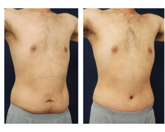 Abdominoplasty - Tummy Tuck after 396153