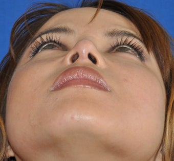 Rhinoplasty-Nostril shaping after 371842