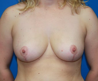 Breast reduction after 248354