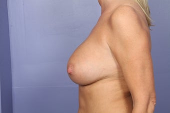 Breast Augmentation after 466419