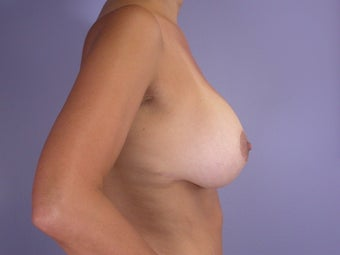 Breast Lift / Breast Augmentation after 291179
