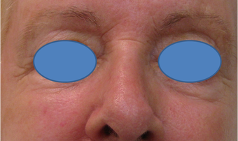 Juvederm Filler for lower eyelid hollows before 77458