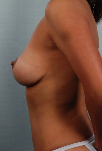 Mastopexy/Lift after 240824