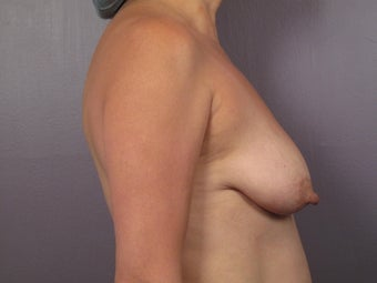 Breast Lift / Breast Augmentation   before 291147