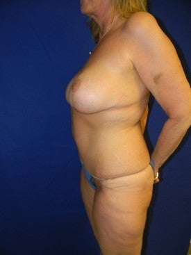 Full Abdominoplasty and Breast Lift with Implants 381787