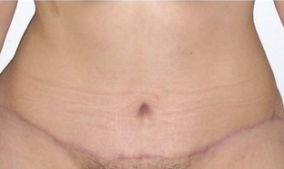 Tummy Tuck (Abdominoplasty) after 142536