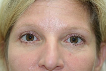 Blepharoplasty after 73284