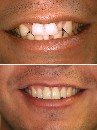 Invisalign before 145505