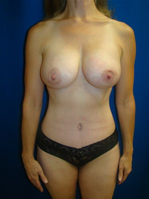 Extended Tummy Tuck and Breast Implants after 134340