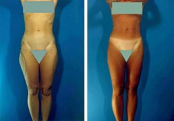 Liposuction before 636223