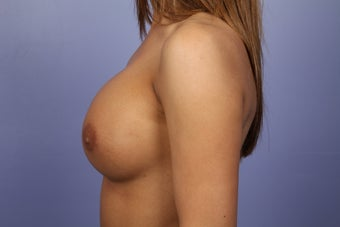 Breast Augmentation after 338720