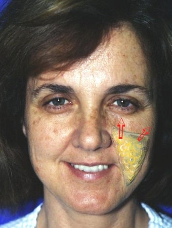Cheek lift diagram superimposed on actual patient before 135031