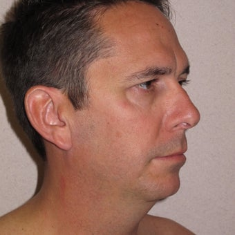 Chin Implant and Neck Liposuction before 576641