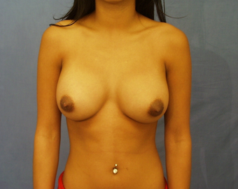 Augmentation Mammoplasty after 259503