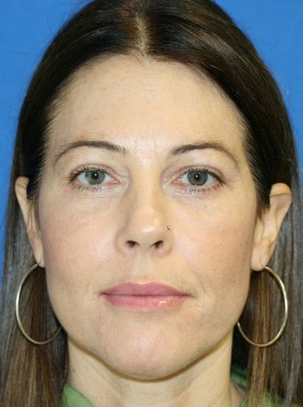 Upper and Lower Eye Lid Blepharoplasty with Fat Transfer after 250411