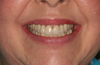 Smile makeover/full mouth reconstruction after 318865