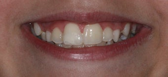 Cosmetic Composite Resin for Broken Front Tooth in Teenager