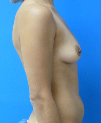 Saline Breast Augmentation 575183