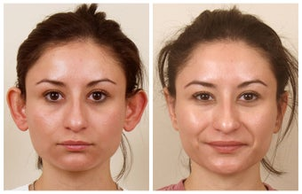 Otoplasty before 325135