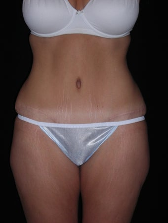 Tummy tuck after 275256