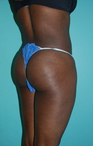 Liposuction with Fat Transfer to Buttocks 'Brazilian Butt-Lift' 371624