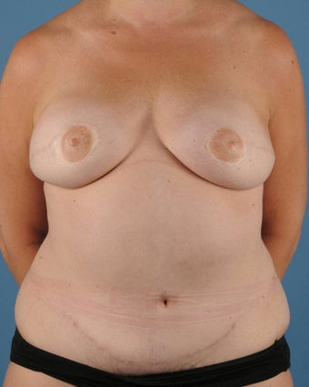 Breast Reconstruction after 509615