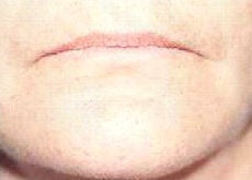 Lip Augmentation  before 341058