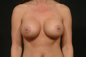 Breast Augmentation after 289488