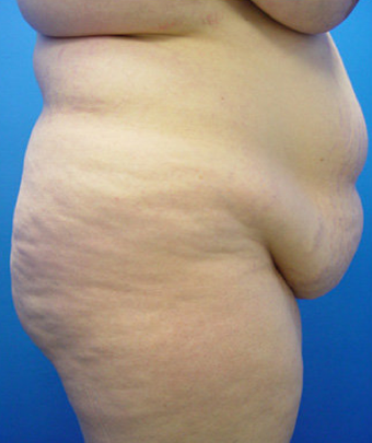 ABDOMINOPLASTY (TUMMY TUCK) before 490939