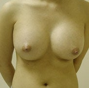 Breast Augmentation after 139576