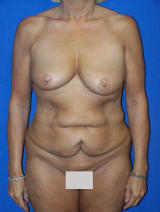 Benelli Lift (limited mastopexy) with Tummy Tuck (abdominoplasty) before 113040