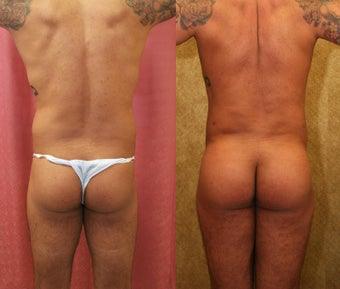 Brazilian buttock augmentation with fat grafting to the buttocks with liposuction in Los Angeles after 583433